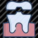 teeth, crown