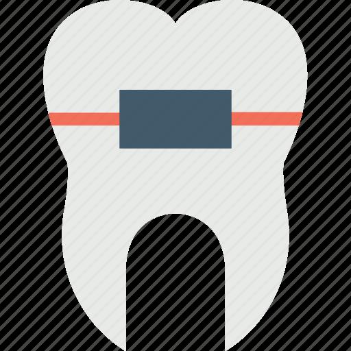dental braces, dental care, dental health, dental improvement, orthodontic icon