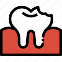 decayed, dental, dentist, healthcare, medical, tooth