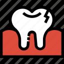 broken, dental, dentist, medical, tooth
