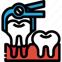 dental, dentist, extraction, medical, remove, tooth