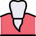 dental care, dentist, gum, health, premolar, rot, tooth