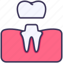 gum, dental, crown, medical, treatment, tooth