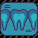 checking, dental, medical, teeth, x-ray
