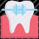 brace, bracket, dental care, dentist, health, orthodontic, tooth