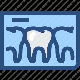 dental, dental records, dentist, dentistry, tooth, tooth x ray, x rays icon