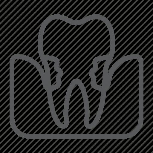 dental, dentist, periodontal, periodontitis, plaque, sick, stomatology icon