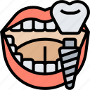 dental, implants, crown, treatment, surgery