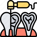 endodontist, therapy, tooth, root, dental