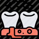 gingivitis, toothache, inflammation, problem, dental