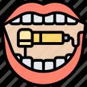 hand, piece, drill, accessory, dentist