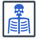 bones, medical, radiology, ray, skeleton, x ray icon