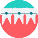 brace, braces, dental, dentist, dentistry, teeth, tooth icon