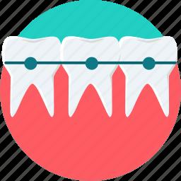 brace, braces, dental, dentist, dentistry, teeth, tooth icon