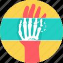 bone, fingers, skeleton, x-ray, xray, radiology