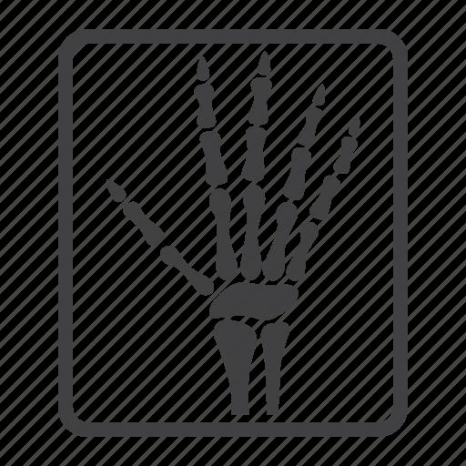 bone, hand, medicine, radiology, ray, x, xray icon