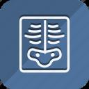 anatomy, bodypart, healthcare, human, medical, medicine