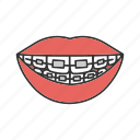 aligner, alignment, braces, dental, retainer, teeth, tooth icon