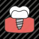 dental, endosseous, implant, orthodontology, prosthesis, tooth, treatment