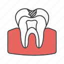 anatomy, caries, dental, dentin, sick, tooth, treatment icon