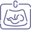 baby, ultrasound icon